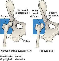 hip dysplasia, hip arthritis